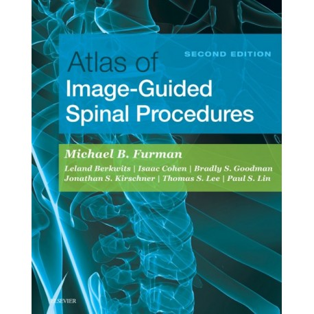 Atlas of Image-Guided Spinal Procedures E-Book (ebook) - Envío Gratuito