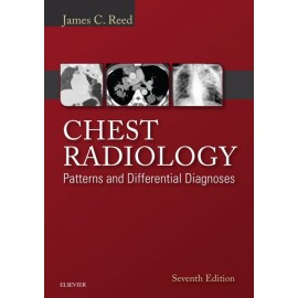 Chest Radiology: Patterns and Differential Diagnoses E-Book (ebook)