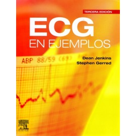 ECG en ejemplos - Envío Gratuito