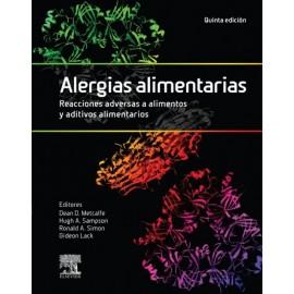Alergias alimentarias. Reacciones adversas a alimentos y aditivos alimentarios - Envío Gratuito