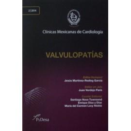 CMC: Valvulopatías