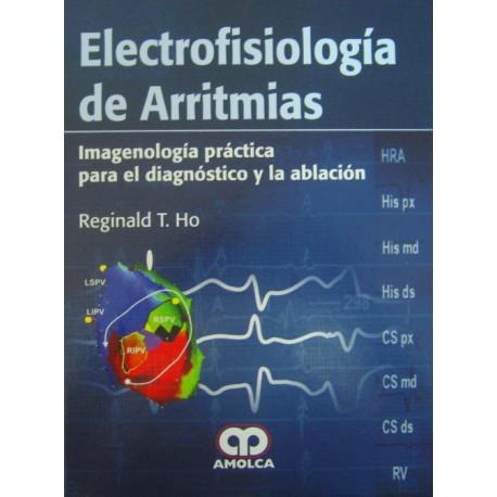 Electrofisiología de Arritmias - Envío Gratuito