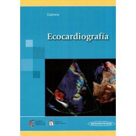 Ecocardiografía