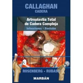 Callaghan. Cadera: Artroplastia Total de Cadera Compleja, Infecciones, Revisión Tomo 3 - Envío Gratuito