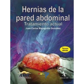 Hernias de la pared abdominal