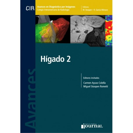 Avances en Diagnóstico por Imágenes: Hígado 2 - Envío Gratuito