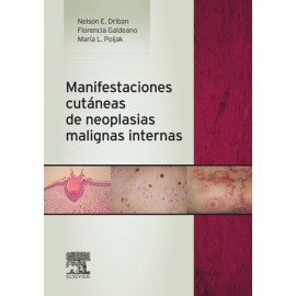 Manifestaciones cutáneas de neoplasias malignas internas - Envío Gratuito