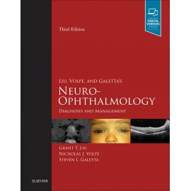 Liu, Volpe, and Galetta?s Neuro-Ophthalmology E-Book (ebook)