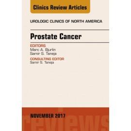 Prostate Cancer, An Issue of Urologic Clinics, E-Book (ebook)