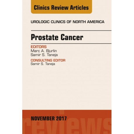 Prostate Cancer, An Issue of Urologic Clinics, E-Book (ebook) - Envío Gratuito