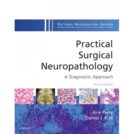 Practical Surgical Neuropathology: A Diagnostic Approach E-Book (ebook) - Envío Gratuito