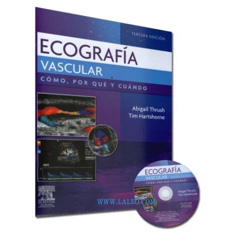 Ecografía vascular. Cómo, por qué y cuándo - Envío Gratuito