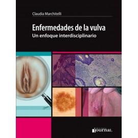 Enfermedades de la vulva en enfoque interdisciplinario - Envío Gratuito
