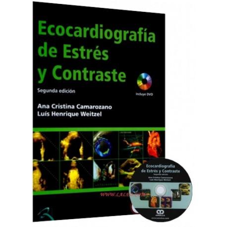 Ecocardiografía de Estrés y Contraste - Envío Gratuito