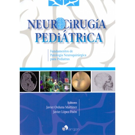 Neurocirugía pediátrica. Fundamentos de patología neuroquirúrgica para pediatras Ergon - Envío Gratuito
