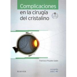 Complicaciones en la cirugía del cristalino - Envío Gratuito