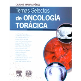 Temas selectos de oncología torácica - Envío Gratuito