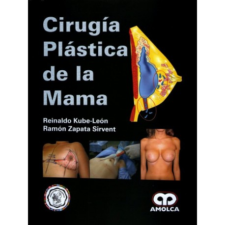 Cirugía Plástica de la Mama Amolca - Envío Gratuito