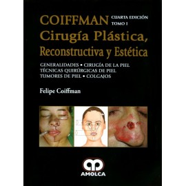 COIFFMAN I: Generalidades, Cirugía de Piel, Técnicas Quirúrgicas de Piel, Tumores de Piel, Colgajos Amolca